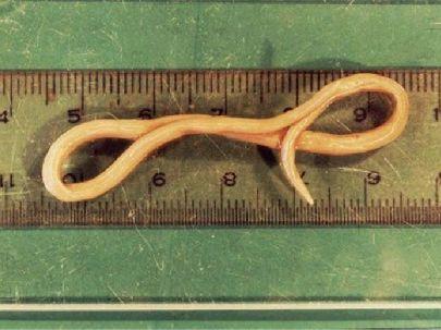 anuris lombroide